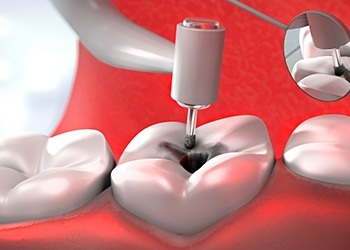 Animatio of root canal therapy