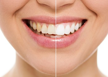 Smiling woman with split view of before and after whitening