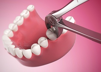Animatio of tooth extraction